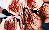 Hiểm họa HIV/AIDS ở huyện nghèo Mường Chà