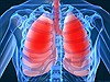 Nguy cơ lây nhiễm bệnh viêm phổi cấp chưa rõ nguyên nhân từ Trung Quốc