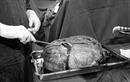 Cụ bà gần 80 tuổi mang khối u buồng trứng nặng 30 kg