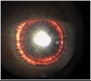 Căn bệnh hiếm gặp khiến người đàn ông có đôi mắt 'rực lửa'