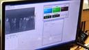 Bộ Y tế yêu cầu các đơn vị thường trực chống dịch do chủng mới của vi rút corona