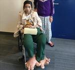 Cô gái có đôi chân khổng lồ đã được phẫu thuật