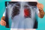 Phương pháp đột phá đưa phổi ra khỏi cơ thể để 'làm sạch' ung thư