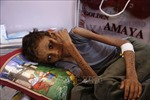 10 triệu người ở Yemen đang bị thiếu lương thực trầm trọng