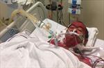 Cứu sống bệnh nhân bị hôn mê sâu chuyển từ Campuchia sang