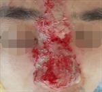 Nhiều người bị hoại tử da, giảm thị lực vì tiêm filler nâng mũi tại spa