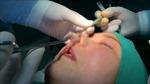 Thủng mũi, hoại tử mông vì nâng mũi tại cơ sở spa