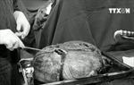 Phẫu thuật khối u 30kg cho cụ bà gần 80 tuổi
