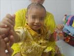Cứu chữa bé 2 tuổi bị chó cắn với các vết thương nặng