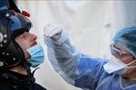 Diễn biến COVID-19 tới 6 giờ sáng 9/8: Châu Mỹ vượt 10 triệu ca bệnh; nhiều nước thắt chặt phòng dịch
