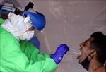 Diễn biến COVID-19 tới 6h ngày 27/11:Thế giới vượt 61 triệu ca bệnh; Nga lại lập kỷ lục về ca mắc và tử vong