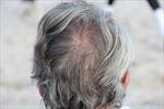 Độc lạ dịch vụ nhổ tóc bạc giá 1,5 triệu/giờ