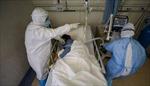 Bệnh nhân tử vong vì COVID-19 bị tổn thương nội tạng giống SARS