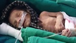 Phát hiện bé gái sơ sinh Ấn Độ bị chôn sống
