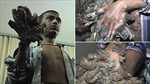 'Người cây' Bangladesh cầu xin cắt cụt tay 'mọc cành' vì quá đau đớn