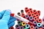 Mỹ xác nhận ca COVID-19 đầu tiên không liên quan đến những người nhiễm bệnh trước