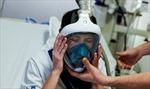 Thiếu máy trợ thở, bệnh viện dùng mặt nạ lặn cho bệnh nhân suy hô hấp