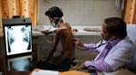 Lao vẫn là bệnh truyền nhiễm nguy hiểm nhất bất chấp nỗ lực toàn cầu