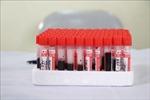 Bộ Y tế kiểm tra công tác khám, xét nghiệm tại 2 bệnh viện Trung ương