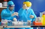 Chuyên gia y tế phân tích giá trị của kỹ thuật xét nghiệm phát hiện virus SARS-CoV-2