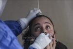 WHO quan ngại tình hình dịch COVID-19 tại Mexico