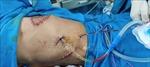 Phẫu thuật thành công trường hợp u thành ngực xâm lấn rộng