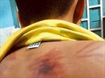 Đề nghị truy tố kẻ bạo hành trẻ em tại khóa tu mùa hè trái phép