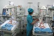 Phẫu thuật thành công cặp song sinh dính liền
