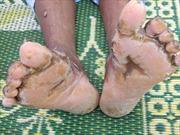 Thêm một ca tử vong do viêm da dày sừng bàn tay, bàn chân