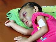 Bé 4 tuổi bị bạo hành về quê với cha đẻ