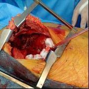 Phẫu thuật cắt khối u quái khổng lồ gần 7 kg