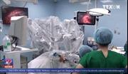 222 bệnh nhân được điều trị với robot phẫu thuật tại Bệnh viện Bình Dân