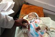 LHQ kêu gọi quyên góp kỷ lục gần 3 tỷ USD cho Yemen