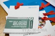 Italy cho phép người dương tính với HIV/AIDS hiến tạng