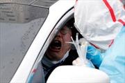Chiến thuật chống dịch COVID khác biệt tại Italy và Hàn Quốc