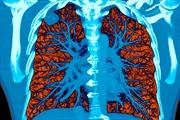 Hệ thống AI giúp phát hiện sớm ung thư phổi