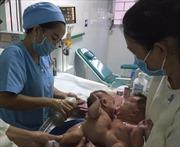 Phẫu thuật tách thành công cặp song sinh nữ dính liền nhau nhỏ tuổi nhất