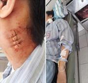 Bệnh viện Bạch Mai trả lời về tố cáo mổ nhầm gây biến chứng