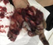 Pháo tự chế phát nổ, nam thanh niên bị dập nát bàn tay