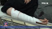 Phẫu thuật nối cánh tay cho nạn nhân vụ lật xe trên đèo Hải Vân