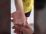 Làm rõ thông tin giáo viên mầm non dùng vật nhọn đâm vào tay bé 5 tuổi