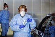 Thụy Sĩ, Hà Lan ghi nhận thêm nhiều ca tử vongdo dịch COVID-19