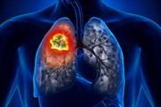 Ứng dụng trí tuệ nhân tạo hỗ trợ chẩn đoán ung thư phổi