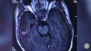 Bắt sống sán dài 10cm sống trong não 'tín đồ' thịt nướng