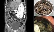 Người đàn ông nuốt 2kg sỏi vào bụng để… giảm lo lắng