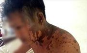 Mở rộng điều tra vụ Việt kiều bị tạt axit ở Quảng Ngãi