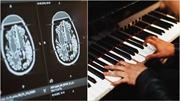 Nhạc sĩ chơi đàn piano khi đang được phẫu thuật não