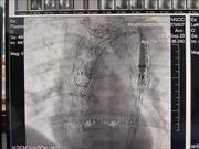 Phẫu thuật thành công bệnh nhân bị bóc tách động mạnh chủ