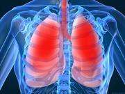 Giám sát chặt chẽ bệnh viêm phổi cấp tại cửa khẩu