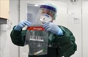 Nghị sĩ Quốc hội Đức đầu tiên nhiễm virus SARS-CoV-2